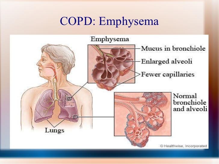 A diagram explaining Emphysema