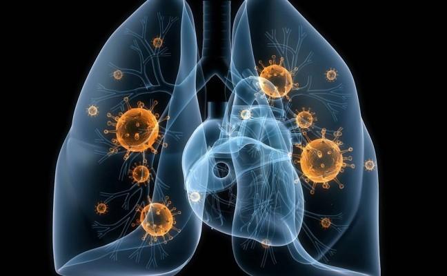 A diagram explaining pneumonia.