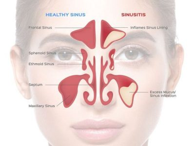 A diagram comparing a healthy sinus, to sinusitis.