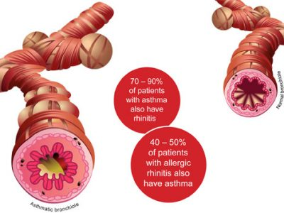 asthma-rhinitis_connection_en
